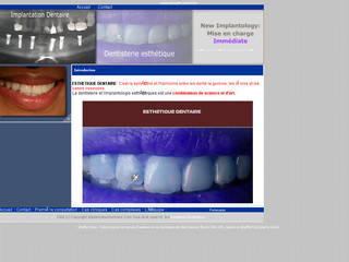 Implant Dentaire Tunisie : implantologie dentaire, dentisterie esthetique en Tunisie