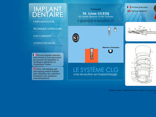 Implant dentaire avec Implantdentaireclg.com