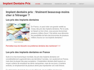 Implant Dentaire - Implantdentaireprix.net